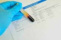 STD Examinations for home std test Usage
